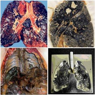 Obat penyakit paru-paru basah