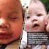 Ibu beri peringatan, jangan mudah biarkan anak dicium sesuka hati selepas anaknya dijangkiti Herpes Simplex