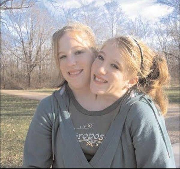 Foto Pasangan Kembar Siam