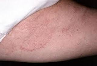 Cara Mengobati Penyakit Herpes Di Paha