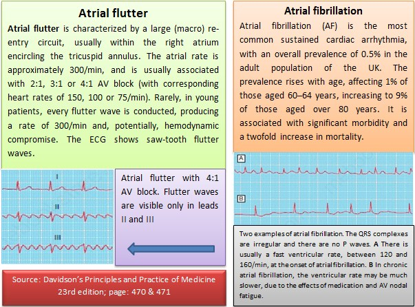 What are the causes of Atrial Flutter/Fibrillation?