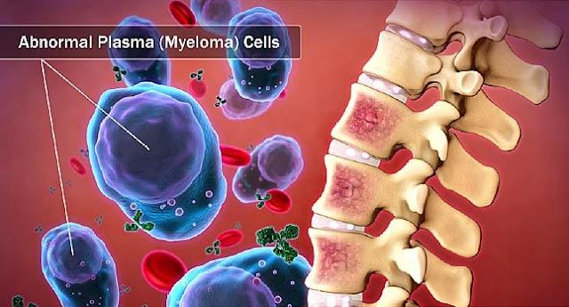 Multiple Myeloma Uptodate