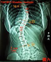脊椎側彎, 脊椎度數, 脊椎側彎矯正, 脊椎側彎治療, 脊椎側彎矯正成功案例, 脊椎側彎 瑜珈, 脊椎側彎 推薦, 脊椎側彎 台中