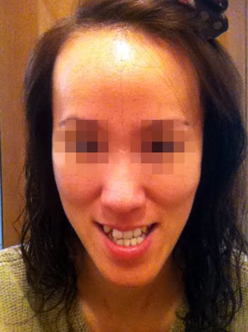 짱이뻐! - This Is Why I Decided To Do Two Jaw Plastic Surgery in Korea