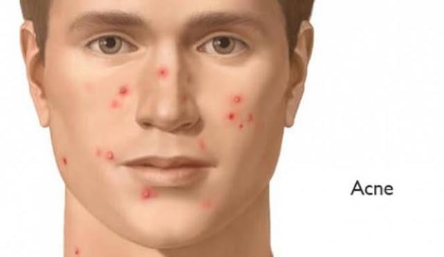 ¿Qué es el acne?