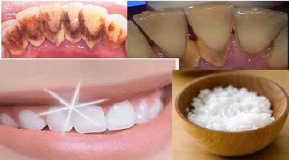 Ini Cara Menghilangkan Karang Gigi Hanya Dengan Garam Dapur