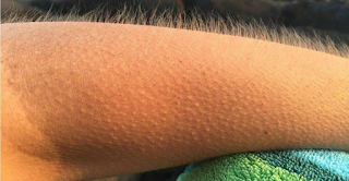 If The Music Gives You Goose Bumps It's Possible That Your Brain Is Special