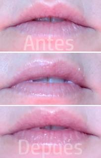 Revox rellenar labios antes después