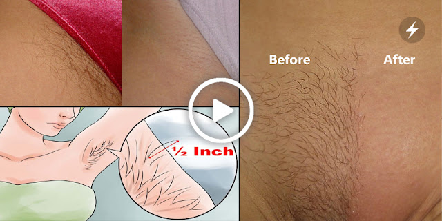 If You Want To Remove Hair Permanently Then See This Simple Tip...!