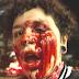 Mulher perde visão do olho esquerdo em protesto após ser atingida por bomba