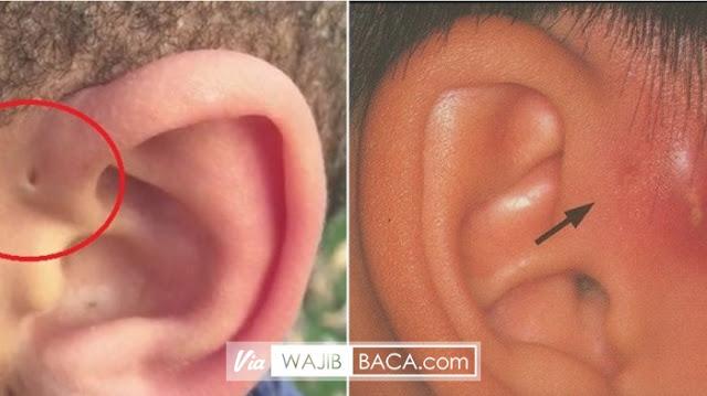 Punya Lubang Kecil di Bagian Telinga Atas? Simak Hal Ini dan Jangan Sampai Infeksi!