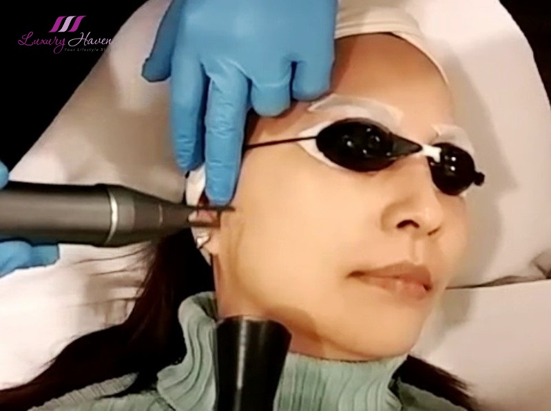 eha clinic aesthetics qswitched laser melasma pigmentation review