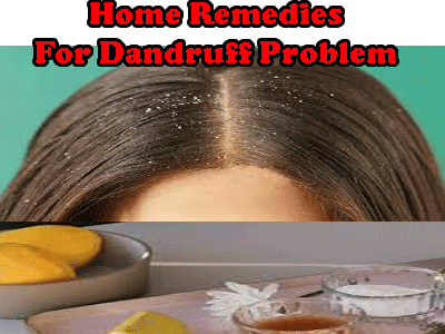 home remedies of dandruff problem