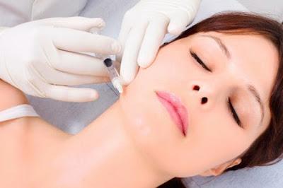 Những điều bạn cần biết về phẫu thuật căng da mặt