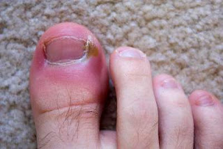 picture of paronychia - ingrown toenail