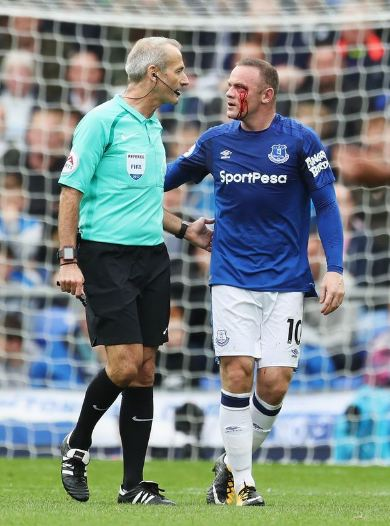 Wayne Rooney Left Bloodied After Suffering Nasty Eye Injury During Match (Photos)