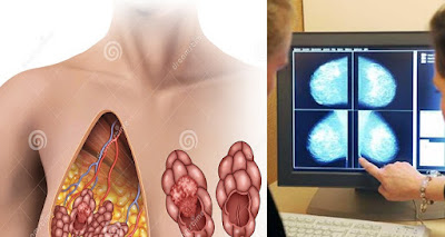 نشربه كل يوم و لا نعلم أنه السبب الرئيسي لسرطان الثدي.. إحذريه