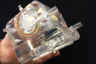 Φτιάχτηκε τεχνητός πνεύμονας που μεταφέρεται στην πλάτη