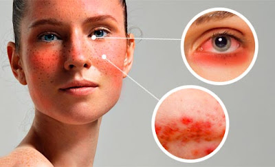 Guide to Rosacea Treatment and Depression