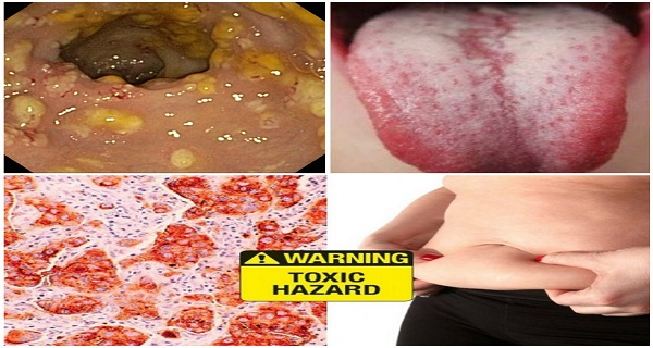 Do Not Ignore These 5 Warning Signs That Your Body Is Full Of Toxins Which Are Making You Sick