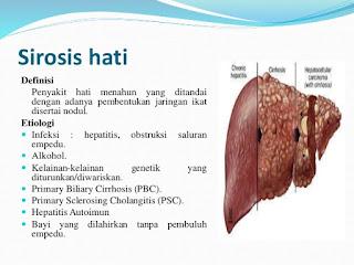 Dr OZ Penyebab Penyakit Sirosis Hati | Cara Mengatasi Sirosis Hati