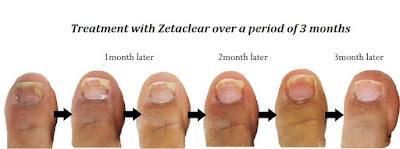 Zetaclear Before and after pic