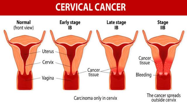 Penyebab Kanker Serviks Paling Utama Dan Cara Mencegahnya