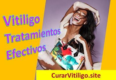 tratamiento-enfermedad-vitiligo-curar-remedios-caseros-naturales