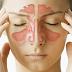 30% Dari Semua Orang Menderita Infeksi Sinus