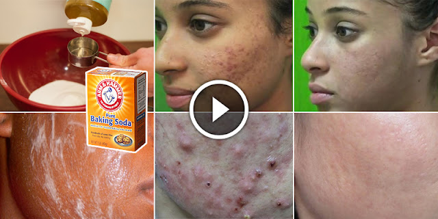 She Rub This Ingredients On The Face And Eliminate Acne Within A Few Days!