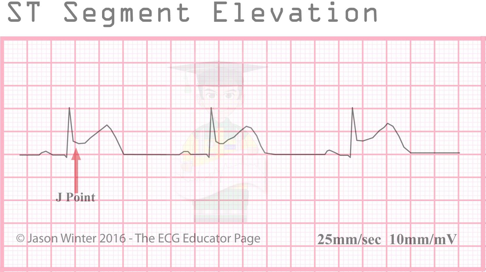 ecg educator blog st segment elevation morphologies