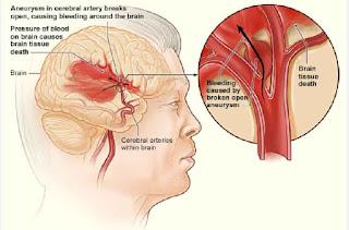 Asuhan keperawatan(askep) stroke non hemoragik