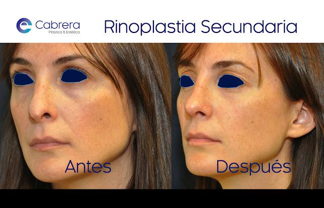 Caso 2 rinoplastia secundaria Córdoba
