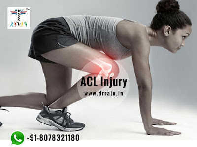Stay Away From Knee Pain With ACL Reconstruction Surgery