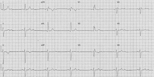 ECG of the Week - 4th May 2015