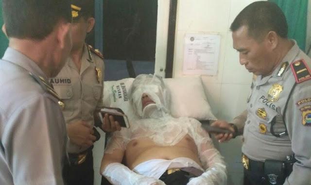 Terkesan Ditutup Tutupi, Tubuh Perwira Polisi Dan TNI Terbakar Api Saat Acara Pemusnahan Barang Bukti Kejahatan