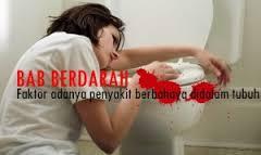 Penyebab BAB Berdarah & Obat BAB Berdarah Alami, Ampuh Menyembuhkan BAB Berdarah Secara Alami