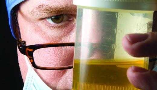 Urine Testing