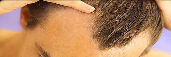 Caspa causa queda de cabelo?