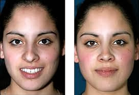 Correction du nez : la rhinoplastie