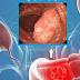 """""""Otrava"""" celulelor canceroase! Acest ulei distruge 93% din celulele canceroase în doar 2 zile"""