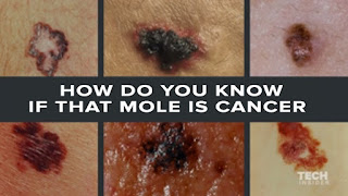 Skin Cancer Moles