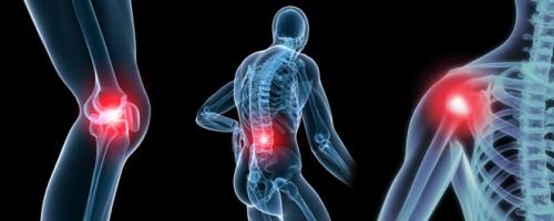7 Cara Alami Sembuhkan Rematoid Arthritis