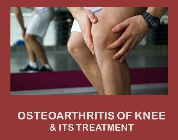 the features of osteoarthritis and its treatment Osteoarthritis and its treatment: what you need to know 6 like other tissues in the body, cartilage is continually remade every day, some cartilage is broken down, and some new cartilage is formed.