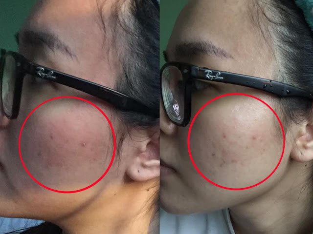 ppp laser clinic before and after
