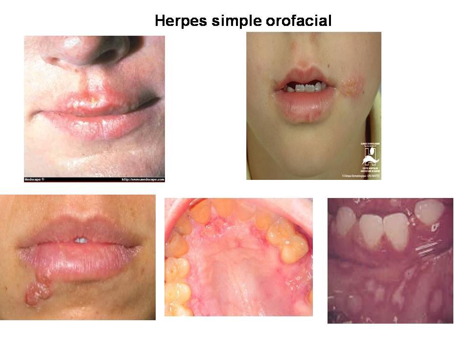 Primer Del Virus De La Boca Del Herpes Im 1