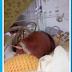 Prematuro vai parar na UTI após enfermeira injetar leite materno na veia da criança