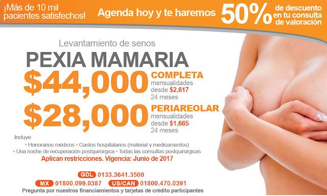 precio levantamiento de mama pexia mamaria busto guadalajara
