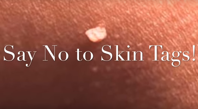 How to get rid of skin tags: 7 natural remedies