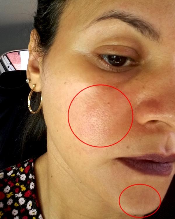 protetor-solar-Actine-FPS-30-Darrow-irritação-na-pele
